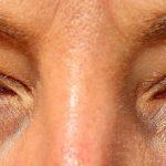 En øjenlågsoperation er simpel